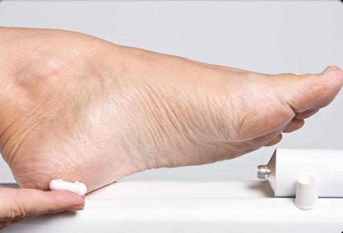 cracked heels cure